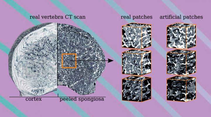 Mejorar el diagnóstico de osteoporosis mediante herramientas de inteligencia artificial